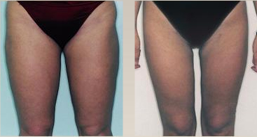 Leg/thigh liposuction surgery [atcosmetics.com]