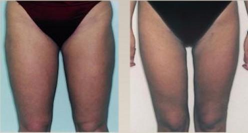 Leg/thigh liposuction surgery [atcosmetics.com]