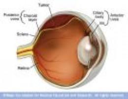 Melanoma of the Eye