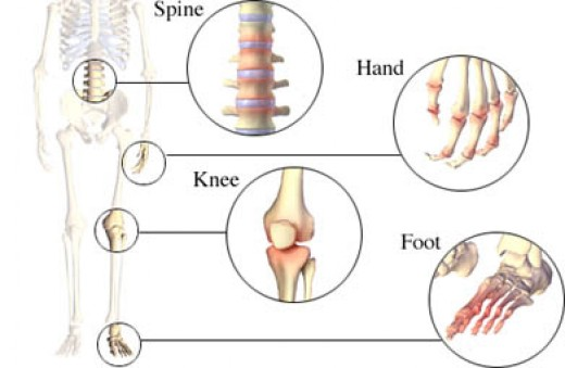 Osteoarthritis can affect any movable joint in the body.