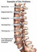 Degeneration in the spine may require fusion surgery.