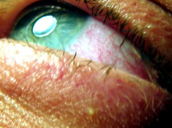 Short-Term Effect of Pot: Bloodshot Eyes