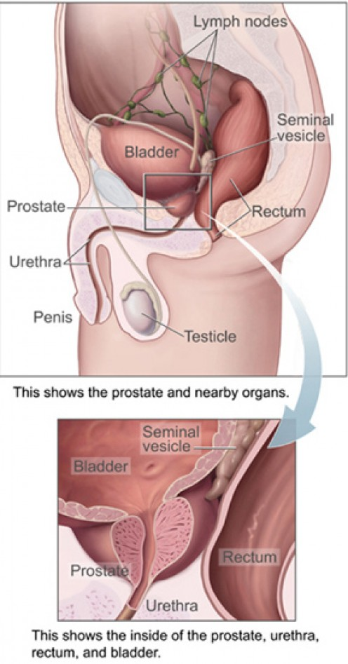 Fig. 3: Diagram of male pelvic area, including prostate (National Cancer Institute, 2008).