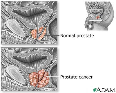 Fig. 4: Normal Prostate (A) and prostate cancer (B). In prostate cancer, the regular glands of the prostate are replaced by irregular glands and clumps of cells. http://www.healthprofessor.com/encyclopedia/hp_other/prostate_c