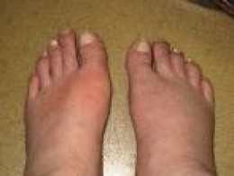 The left foot shows signs of typical gout in an active flare-up.
