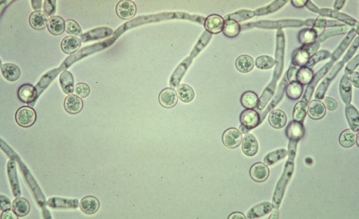 Candida Albicans.