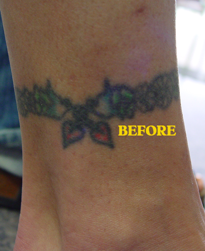 Old tattoo before cover up