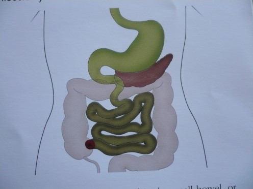 This diagram shows how an ileostomy is surgically made. Part of the terminal ileum (last section of small bowel) to form a stoma. Then it is brought through the abdominal wall, everted to form a spout and sutured to the skin. The output consistency w