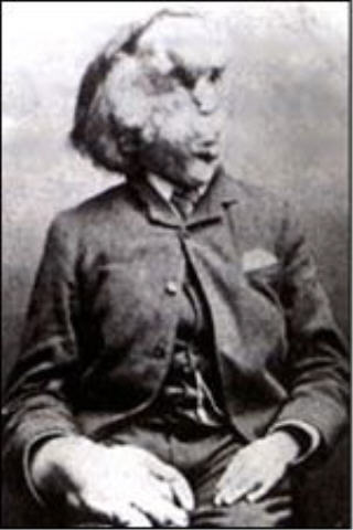 Joseph Merrick became something of a celebrity eventually.