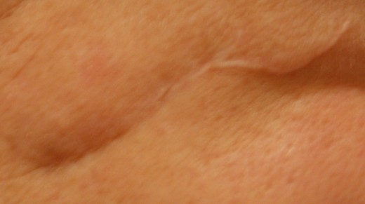 The upper part of the scar is still prominent - the bottom part has just...disappeared!