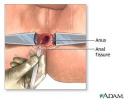 operation for anal fissure internal sphincterotomy