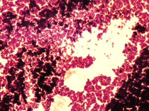 Gram-positive Staphylococcus is purple after Gram staining. Magnification 1000xTM. T. Port