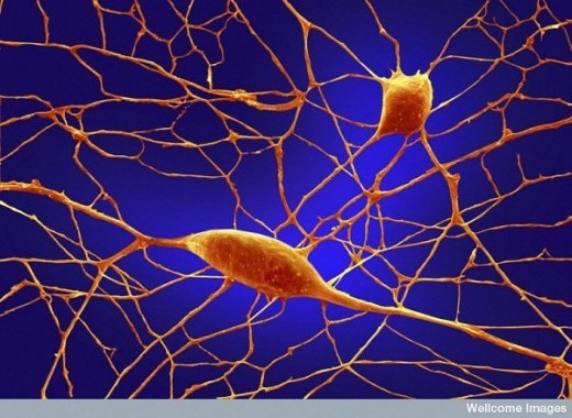Human neurons (cells in the brain)