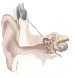 Cochlear Implant in situ. Image credit WikiCommons.