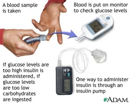 A diabetic tests his or her blood and then determines how much insulin to take