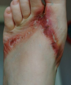 Flip-Flops removed from Wal-Mart shelves caused chemical burns on feet!