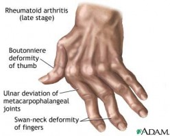 Dealing With a Diagnosis: Rheumatoid Arthritis (RA)