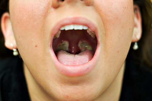 tonsillectomy-as-an-adult-free-fucking-in-ass-videos-of-flipino-girls-only