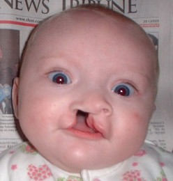 Baby with cleft lip at 5 months.