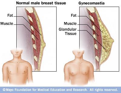 Normal male breasts versus Gynecomastia condition