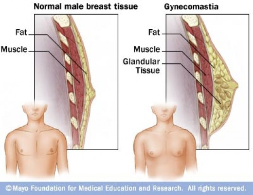 Normal male breasts versus Gynecomastia condition