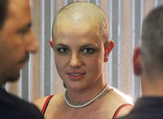 Britney Spears told me it was okay to be bald.