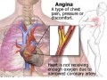 Angina Pectoris: Symptoms, Treatment, Plus 10 Preventive Health Measures