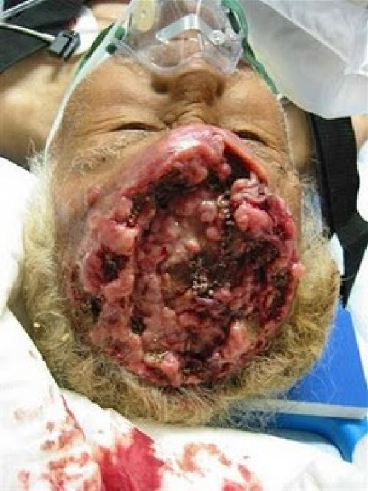Shota Fujiwara's head after had been surgical cut http://karakoza.blogspot.com