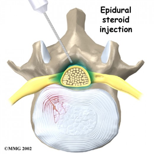 lumbar epidural steroid injection cpt