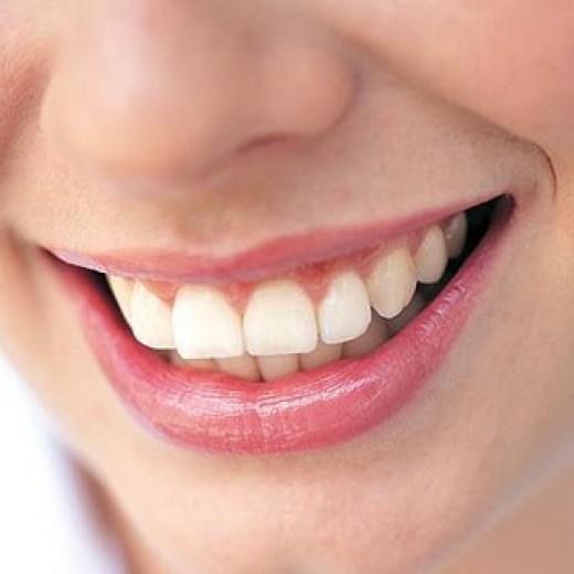 dental fluoride