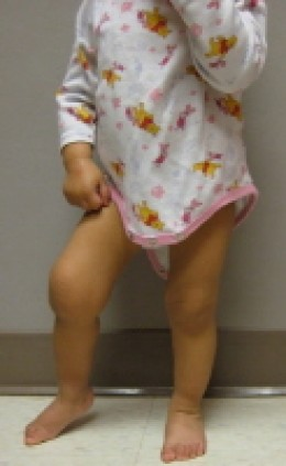An 18 month old child with arthritis showing in her swollen knees