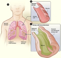 Experience - Brochioectasis Lung Disease