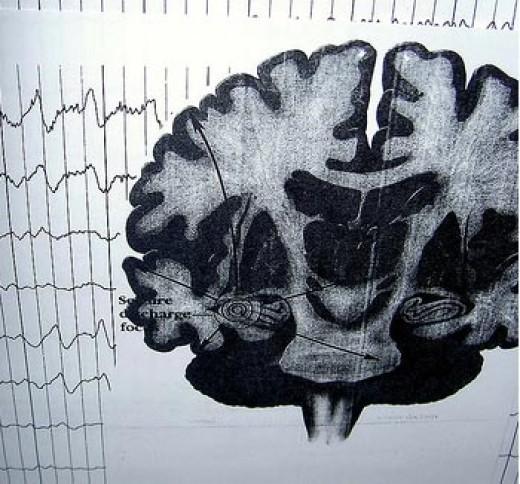 Complex Partial Seizure Brain Scan