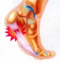 The Truth About Shoes And Plantar Fasciitis