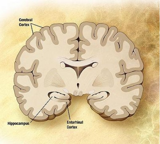 This is a slice through a healthy brain