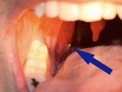 Often misdiagnosed as a sore-throat