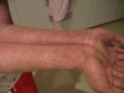 Can Chinese Medicine Cure Eczema?