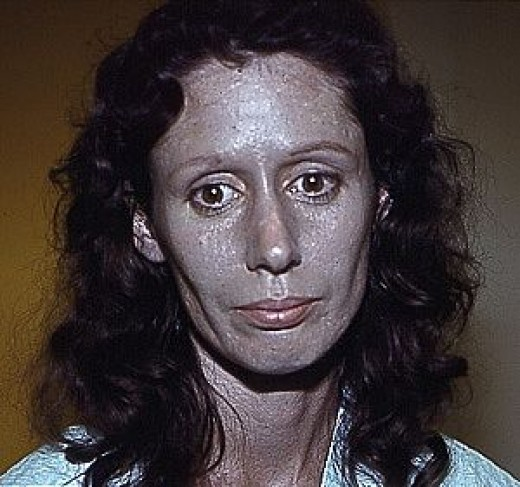 Rosemary Jacobs Suffering from Argyria