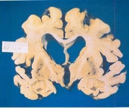 Alzheimer Brain      http://alzheimers.about.com/