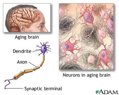 Aged Nervous Tissue    http://health.allrefer.com/health/alzheimers-disease-aged-nervous-tissue.html