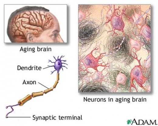 Aged Nervous Tissue    http://health.allrefer.com/health/alzheimers-disease-aged-nervous-tissue.html