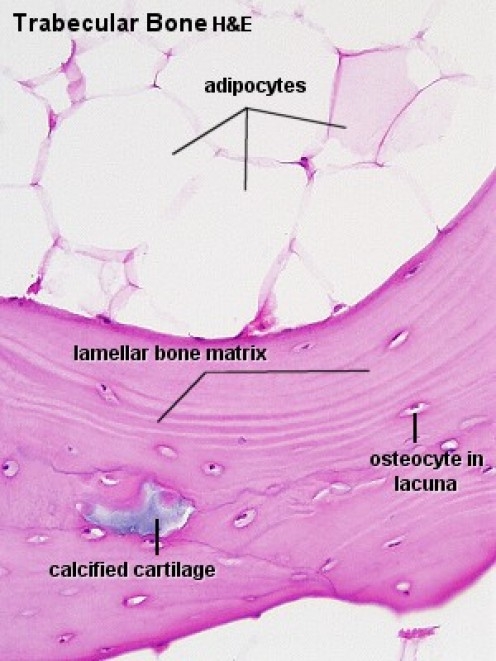 A microscopic image of trabecular bone and its surrounding matrix.