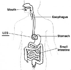 Foods and beverages can relax the muscle or interfere with the function of the LES.