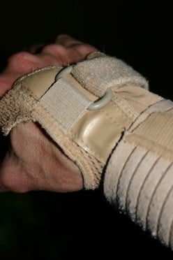 Natural Treatments For Carpal Tunnel Syndrome
