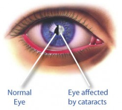 Cataract Eye Surgery, Operation and Recovery after Surgery