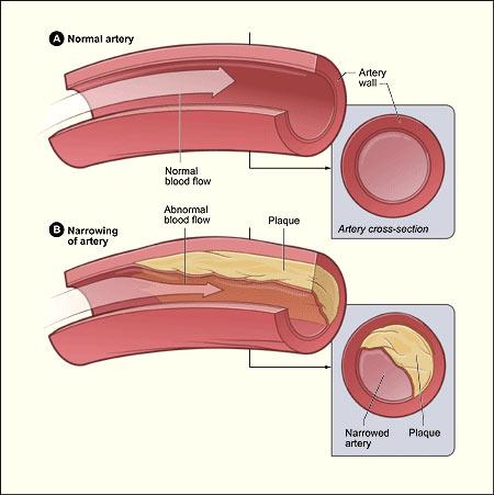 Normal artery versus an artery with plague buildup.