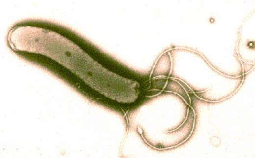 The H. Pylori bacteria under a microscope.