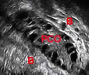 "ULTRASOUND picture of PCOS Polycystic ovary at ""PCO""Bowel at ""B""(Courtesy of http://www.advancedfertility.com/)"