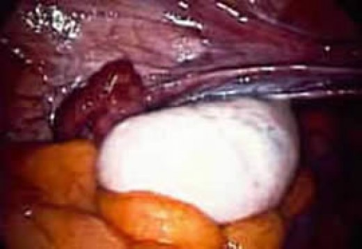 "PHOTO of an enlarged ovary at laparoscopy or ovarian ""drilling""(Courtesy of http://www.advancedfertility.com)"