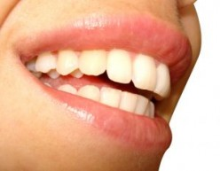 Home Remedies for Teeth Whitening - How to Whiten Teeth for Free